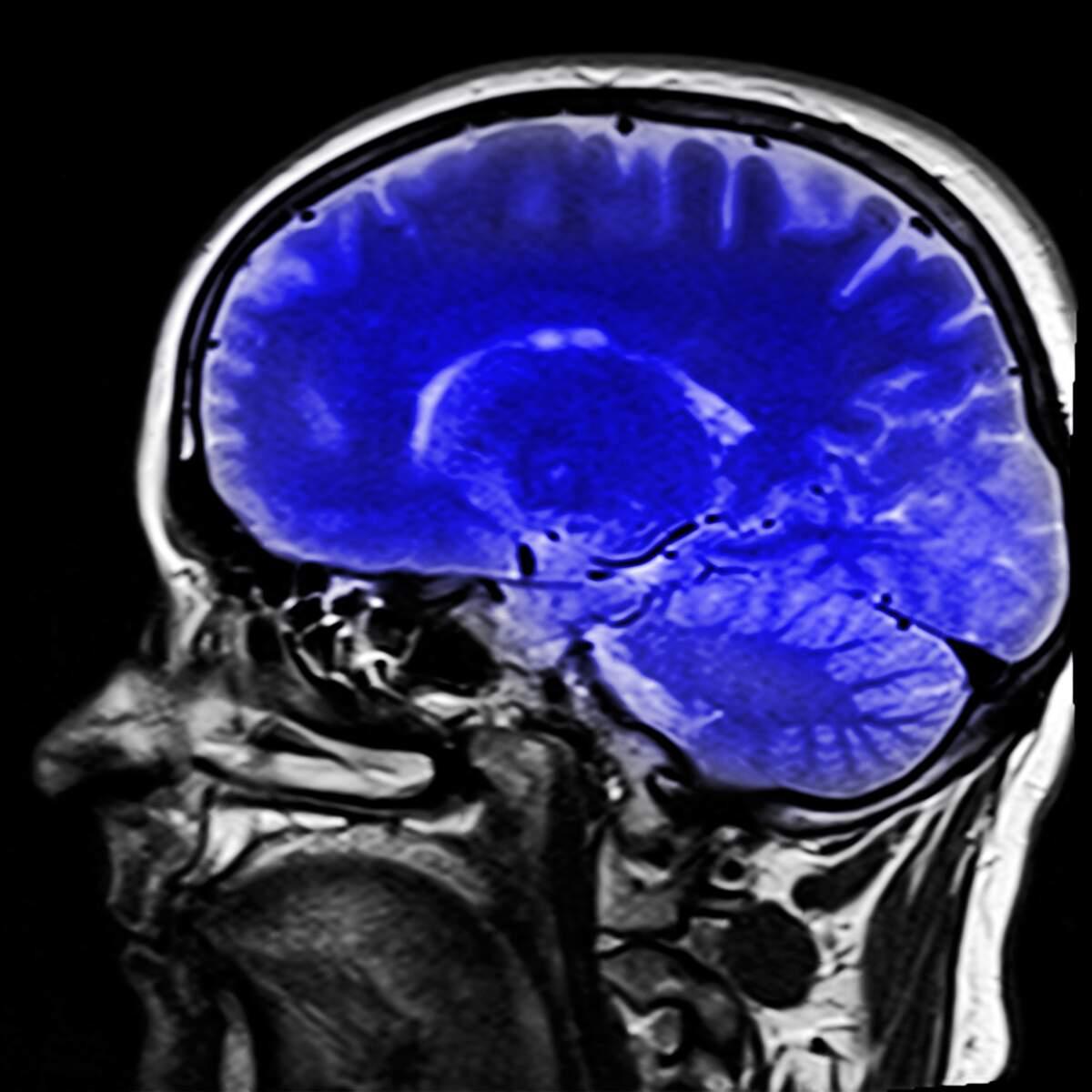 Image for Mental Retardation Awareness Month