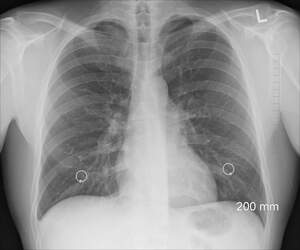 Image for Lung Leavin' Day